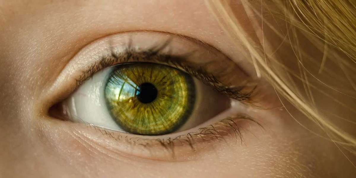 Eye Floaters in the Vitreous: A Guide by Natural Eye Care
