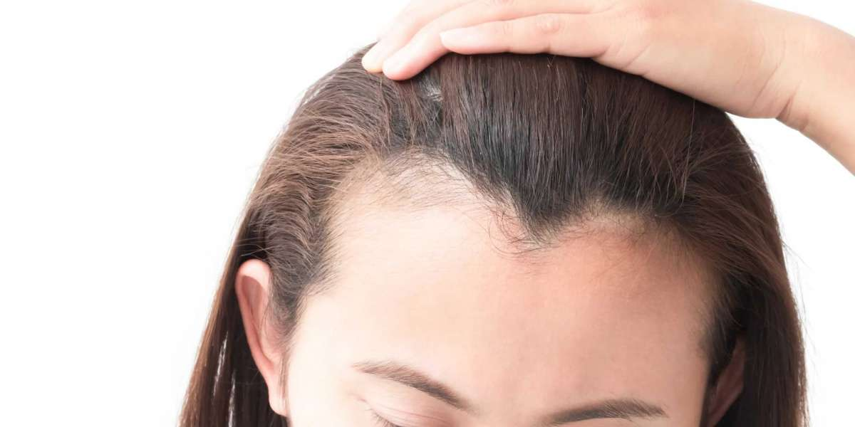 WOMEN'S BEST HAIRCUTS & HAIRSTYLES FOR A RECEDING HAIRLINE