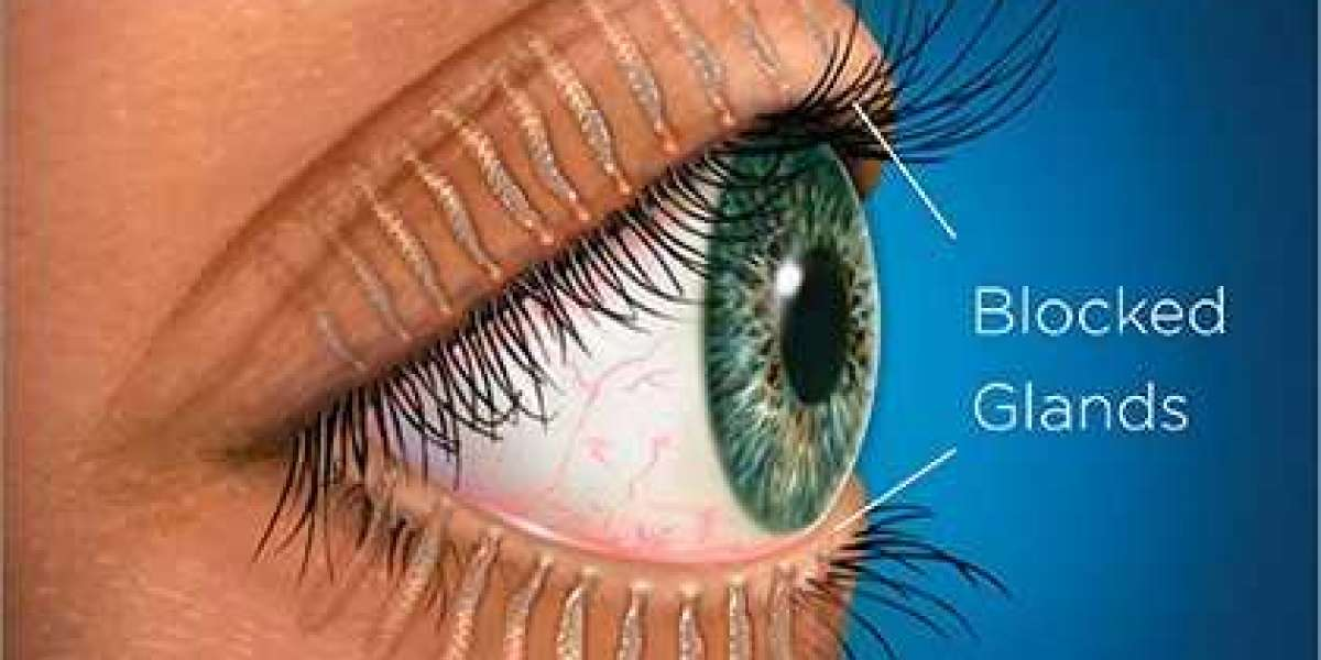 CHALAZION CAUSES SYMPTOMS & TREATMENT, THE LUMP IN EYES