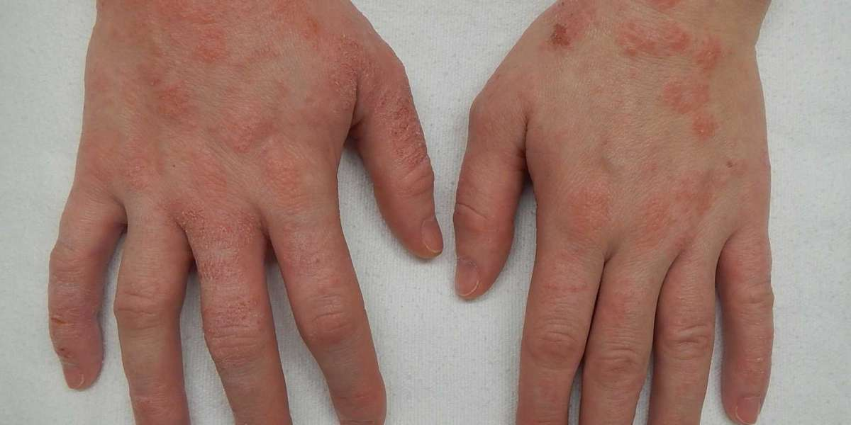Important facts about Eczema