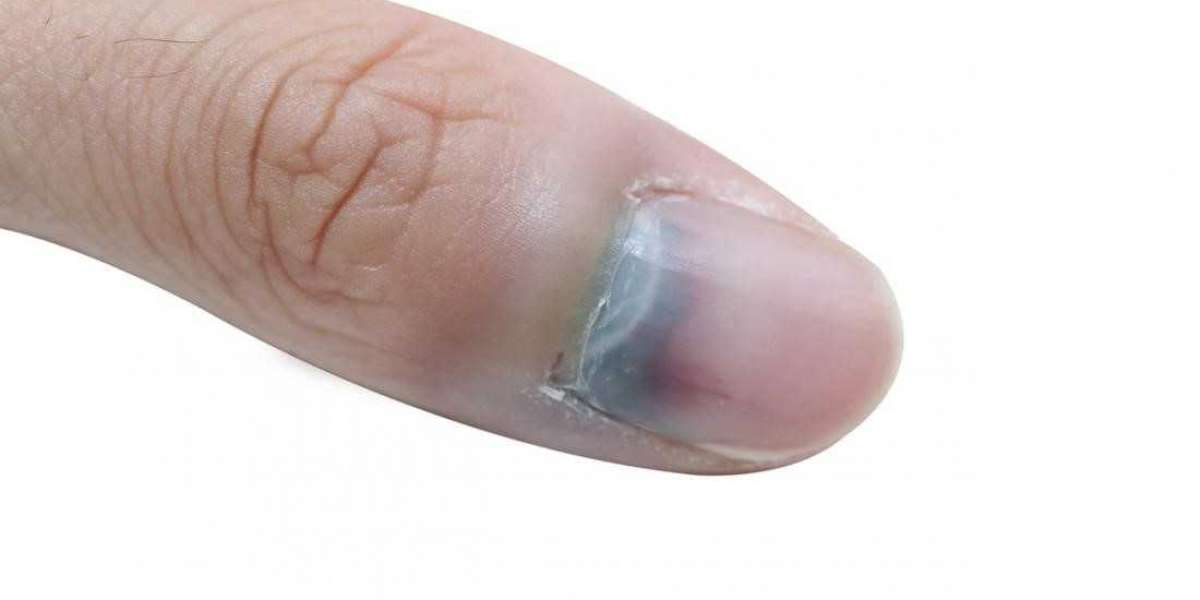 ASK ANA: Black Spots In Nails
