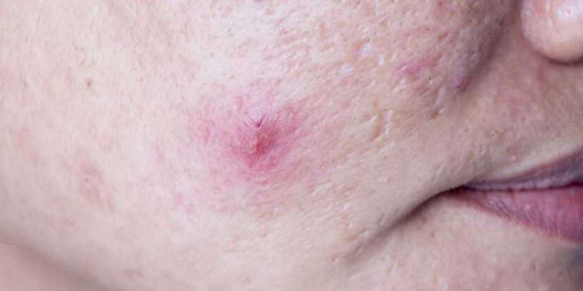 What are these bumps? Sebaceous hyperplasia.