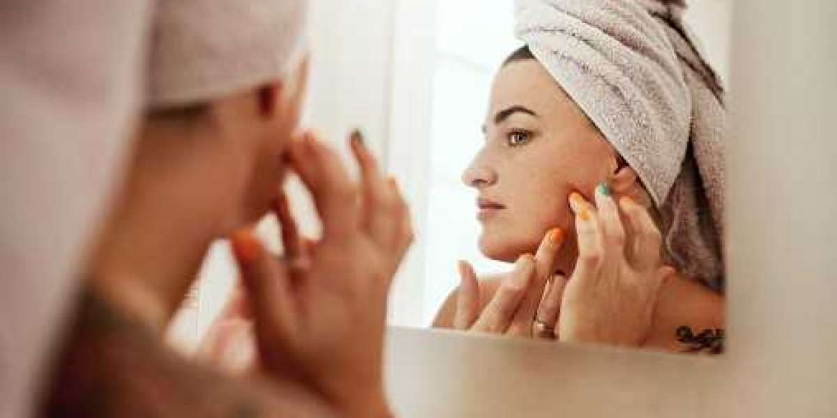 How to Treat White Spots on Skin