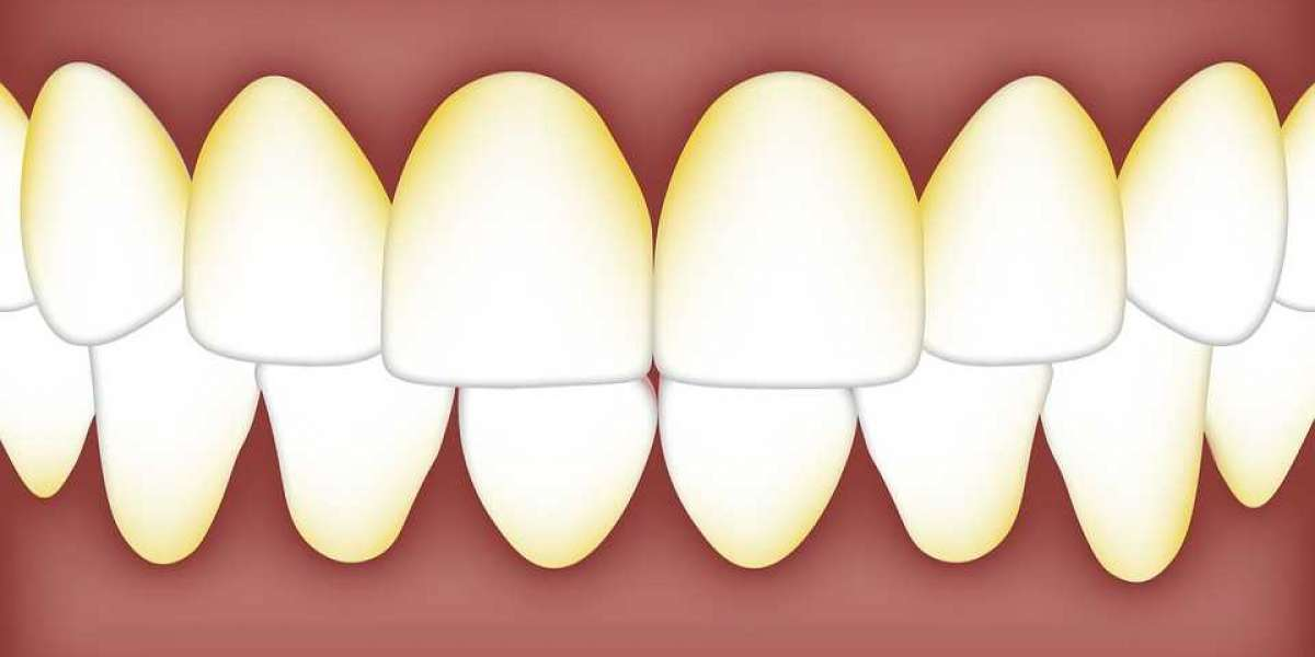 Eliminate Plaque & Stop Gum Disease – Advice Straight From the Dental Office