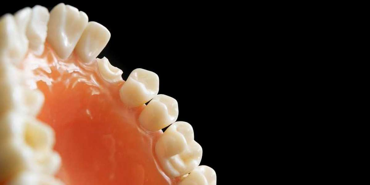 What Causes Tooth Decay? (AND How Can We Stop it?)