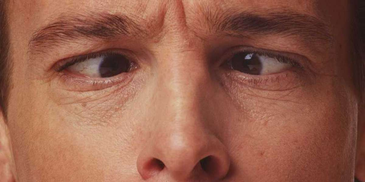 STRABISMUS (CROSSED EYES): TYPES, CAUSES, SYMPTOMS, DIAGNOSIS AND TREATMENT OPTIONS