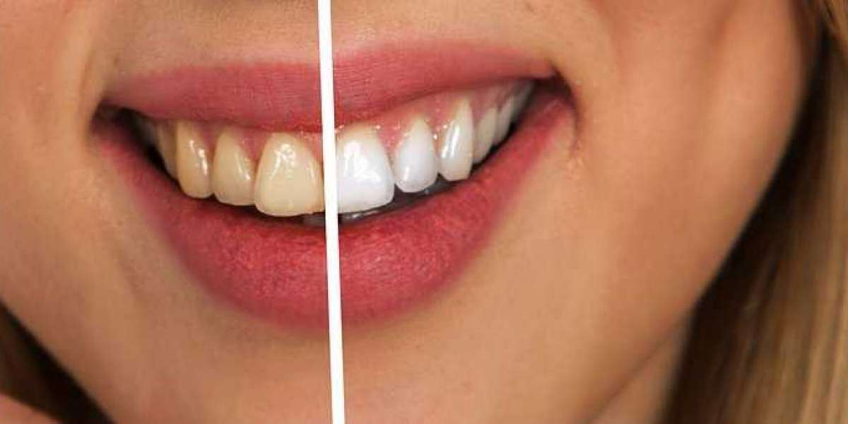 Foods to Eat, Foods to Avoid: The Diet's Role in Dental Health