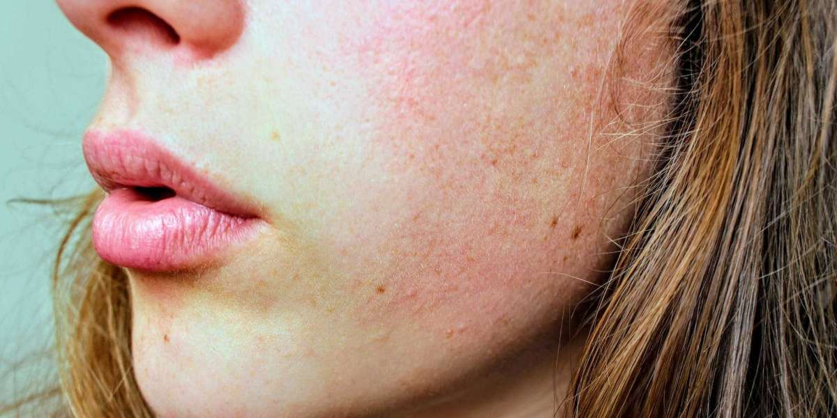 A DERM SHARES THE 5 BEST INGREDIENTS FOR DRY SKIN