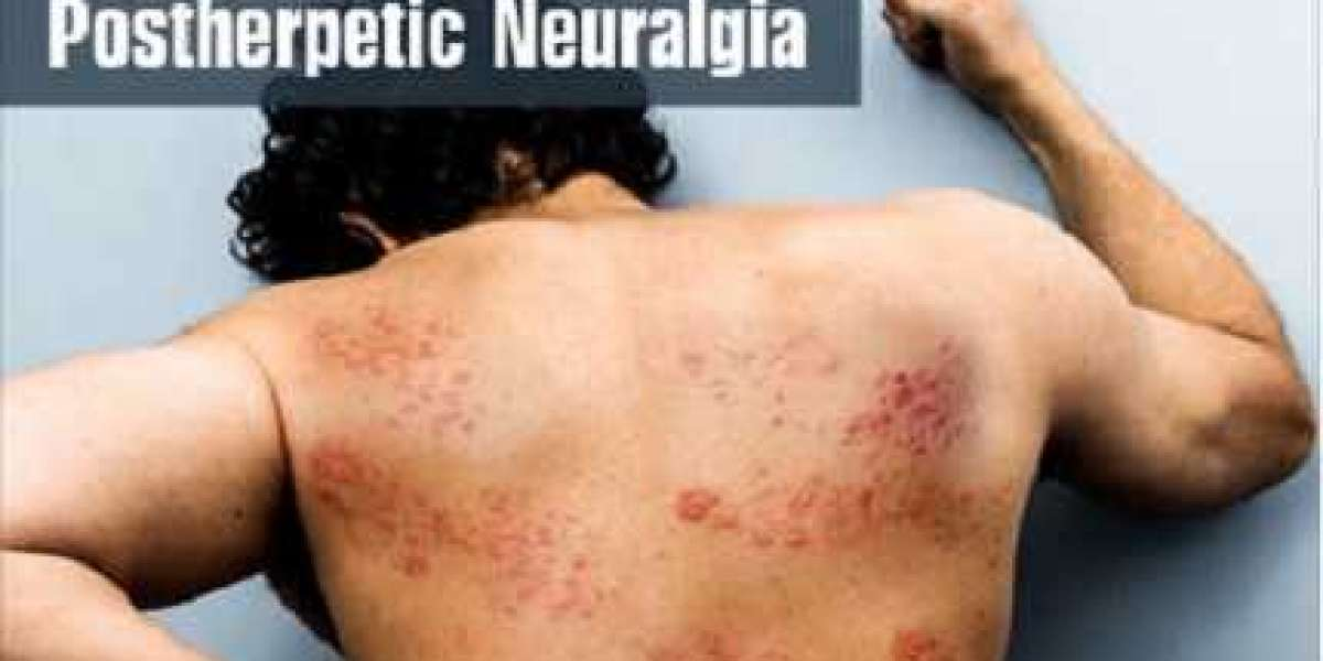 KNOW EVERYTHING ABOUT POSTHERPETIC NEURALGIA IN A NUTSHELL
