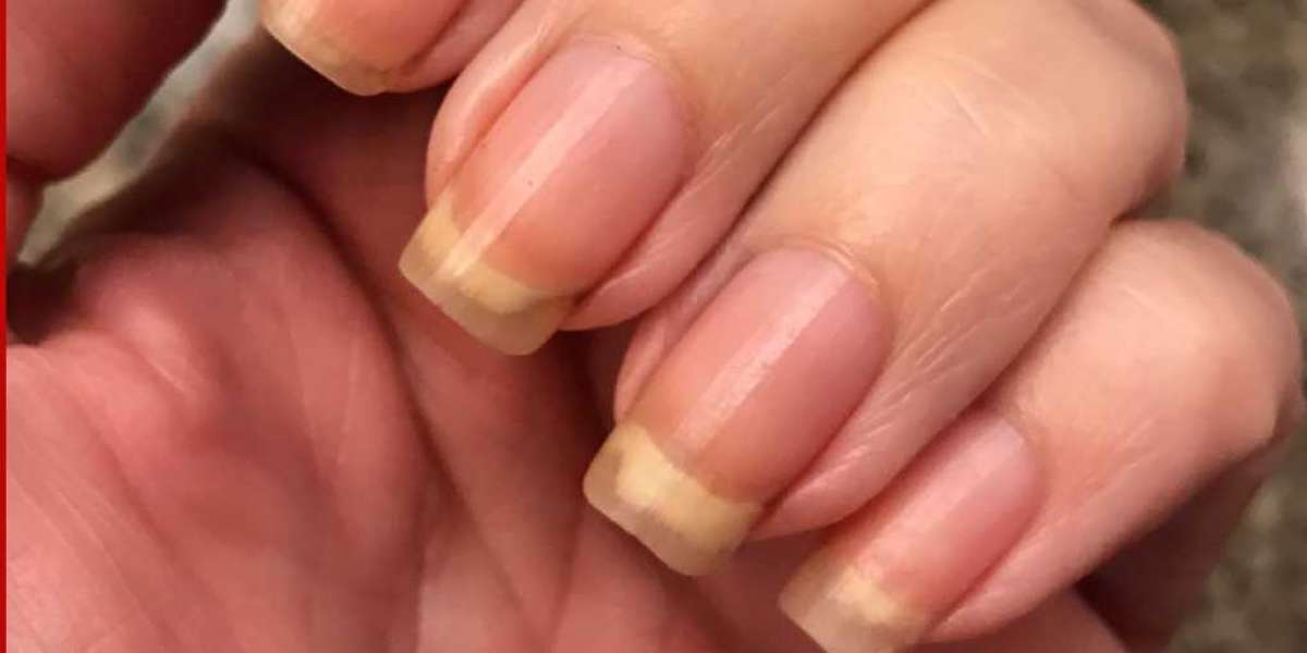 Clear Fingernails & Health Issues